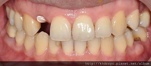 牙冠增長17.jpg