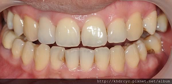 牙冠增長82.jpg