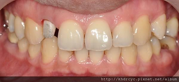 牙冠增長84.jpg