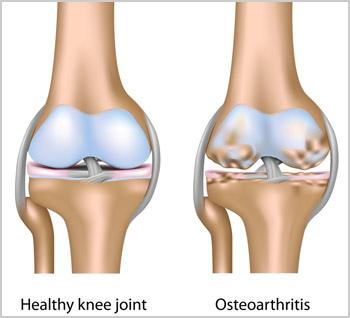 knee_osteoarthritis.jpg