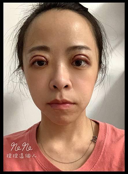 割雙眼皮 術後 紅腫
