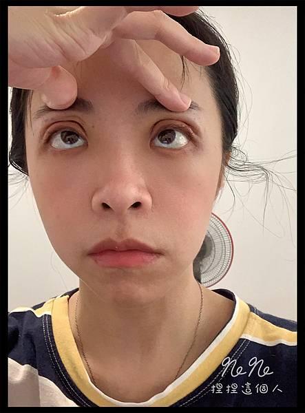 割雙眼皮 術後 復健運動