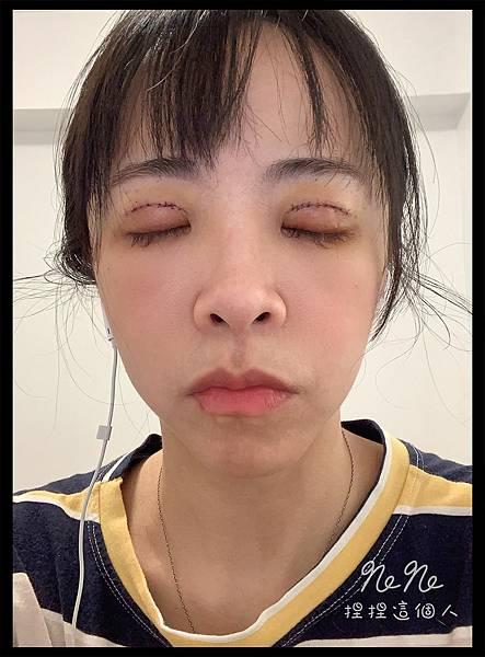 割雙眼皮 術後 縫線照