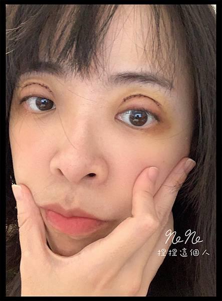 割雙眼皮 術後 瘀青