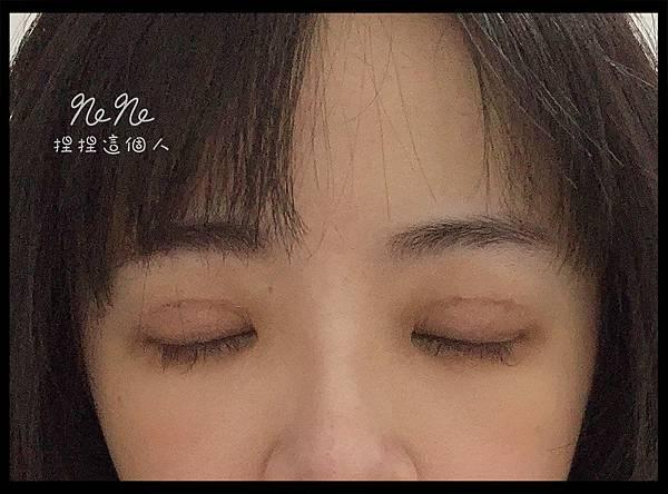 割雙眼皮 術後 拆線後