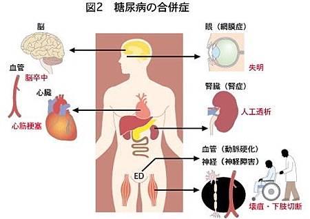 糖尿病03