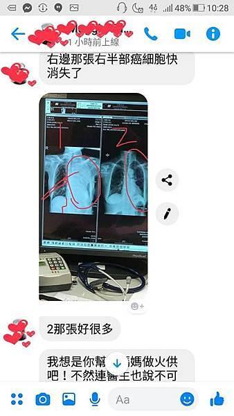 肺癌前後變化20190529-3.jpg