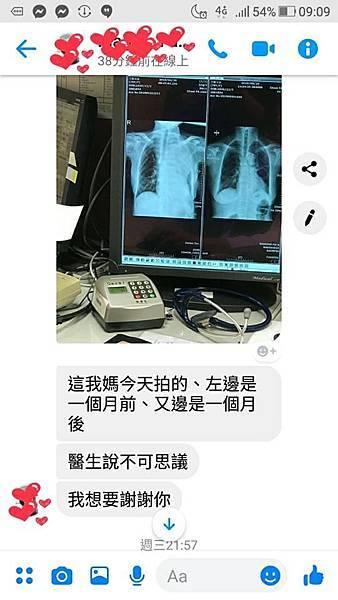 肺癌前後變化20190529-2.jpg