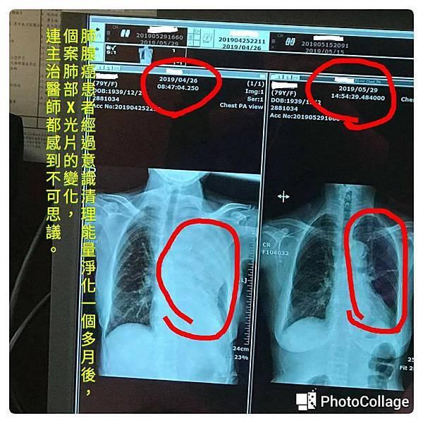 肺癌前後變化20190529-1.jpg