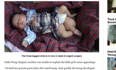 河北夫婦生出3條腿的嬰兒