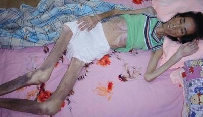 法輪功學員任淑傑被非法關押在龍山教養院、馬三家教養院長達三年之久,遭受非人的迫害,2004年12月24日回家時身體極度虛弱。由於食管堵死被活活餓死。於2005年9月1日死亡,兒子只有十幾歲。(明慧網)
