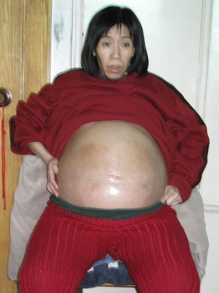 瀋陽市法輪功學員吳樹艷被劫持到遼寧省女子監獄,曾被單獨關押3年、每天12小時奴工迫害。以致腹水症狀加重,開始不能躺下睡覺,每天只能坐著,整天無法入睡。(明慧網)