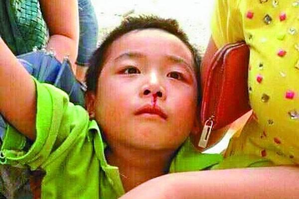 「令人極度悲傷的圖」 浙江百小學生中毒氣