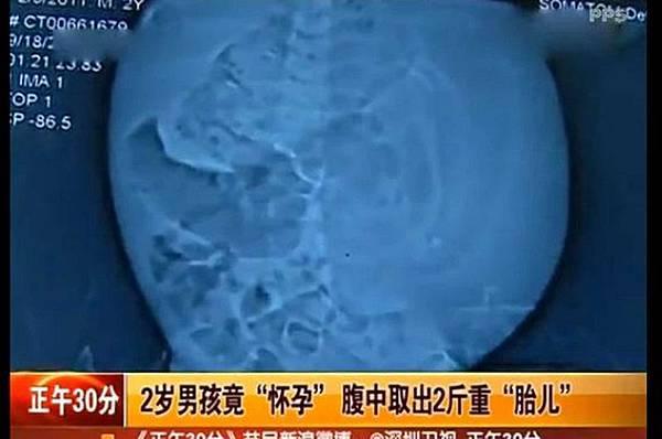 川2歲男童「懷孕」 取出2斤重胎兒,經CT檢查後發現,小峰肚子裡的包塊裡能清晰看見脊柱、四肢等雜亂的組織。(視頻擷圖)
