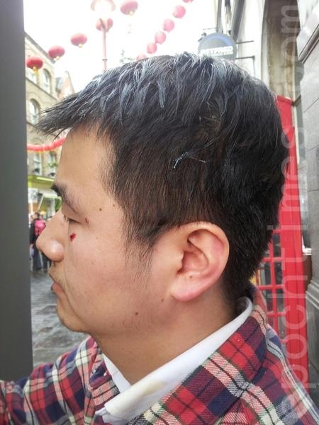 倫敦中國城徵簽義工小李被打破眼角。(安同/大紀元)