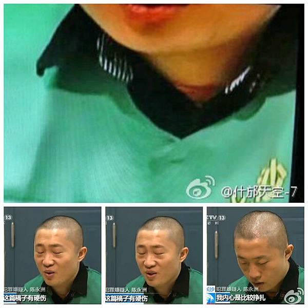 近日,被湖南警方刑拘的《新快報》記者陳永洲,首次登上中共官方媒體中央電視台被「遊街示眾」,節目視頻顯示陳永洲脖頸處的兩道明顯血痕。(網絡圖片)
