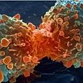 中國每年新增癌症患者佔全球五分之一