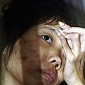 近年來,中國女性吸毒人數急速上升,90%的女人由於毒資問題而走上賣淫的道路。圖為雲南芒市戒毒  中心感染愛滋病的吸毒女性。(圖片來源:China Photos/Getty Images)