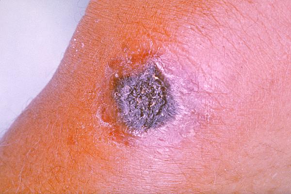 皮膚炭疽病焦黑似炭的模樣。