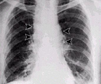 肺炭疽病人X光攝影,可見局部腔室擴大。