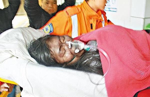 ■馬來西亞籍女子鄧金梅吸入濃煙,留醫深切治療部。