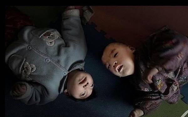 山西省民間有很多慈善育嬰院,來幫助被父母拋棄的殘疾嬰兒。2009年4月14日 (網絡圖片)