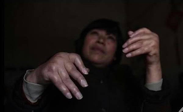 河南省舞鋼市洪河邊的張橋村,45歲的孫曉軍,四年前手和腳都不能行動,經多家醫院治療,沒有見效。2009年4月7日(網絡圖片)