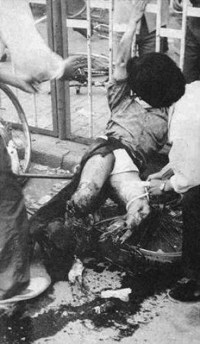 方政的雙腿被坦克輾碎(網絡圖片)