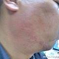 記者整個臉被打的後紅腫明顯,並有血印。(網絡圖片)
