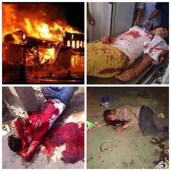 越南暴亂中被燒的中國工廠以及受傷的華人(網絡圖片)