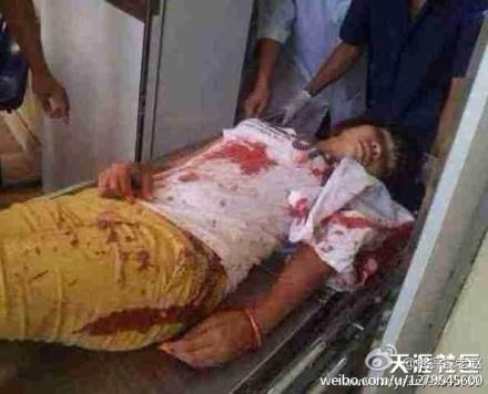 越南反華暴動中,上百華人被打傷。傳20多華人被打死。多個華人工廠被燒毀。(網絡圖片)