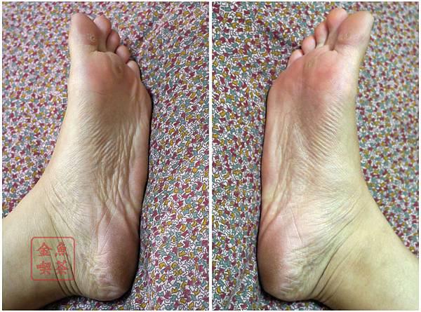 Dr.Douxi朵璽 杏仁酸足膜 7/4使用前素腳