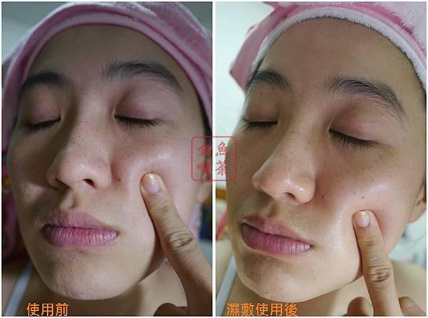 專科 保濕專科化妝水(滋潤型)+保濕專科乳液 使用後