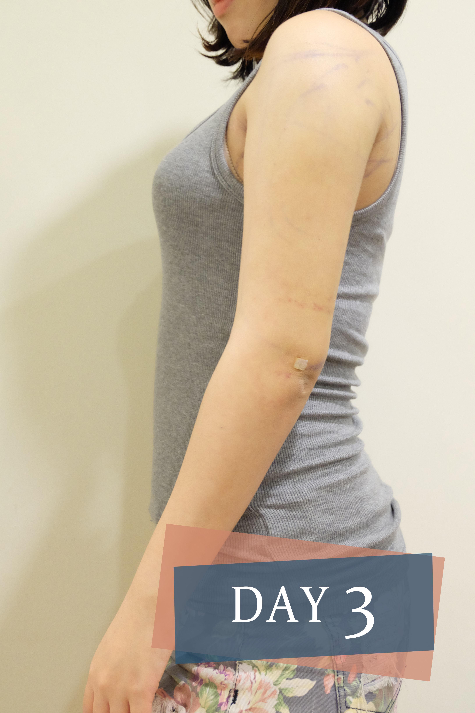 雷射減脂 贅肉  掰掰袖 瘦手臂 手臂