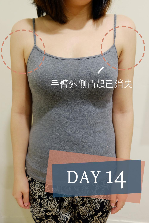 掰掰袖 雷射減脂 瘦手臂 手臂