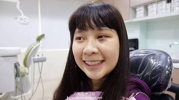 隱適美-彰化陳筠婷醫師 (9)