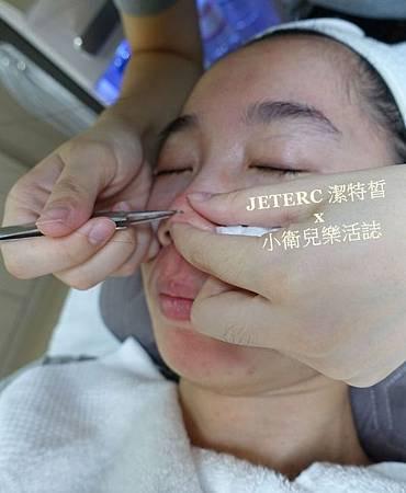 台中韓式肌膚管理-潔特皙 JETERC (3)
