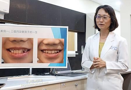 台中西屯隱適美矯正推薦 -光流牙醫