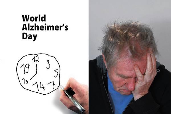 人工智慧再度造福群眾!阿茲海默症竟然可以預測啦!