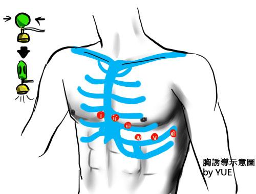 EKG2 胸誘導示意圖.jpg