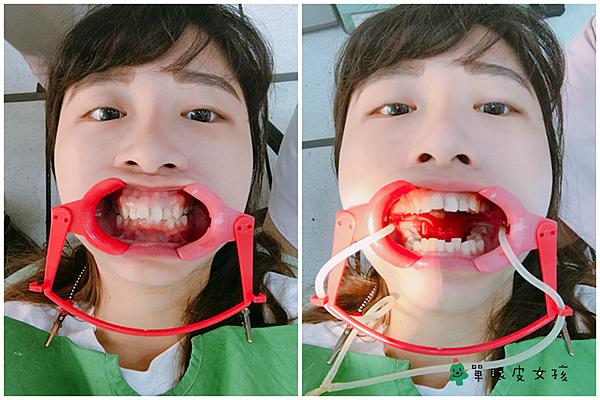牙套1.png