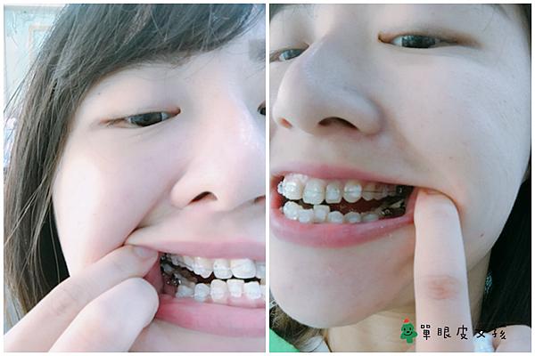 牙套4.png