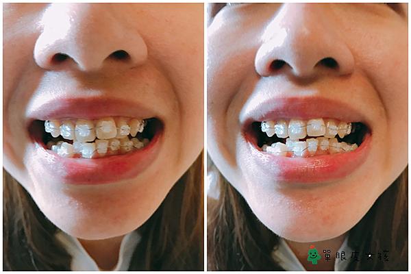 牙套5.png