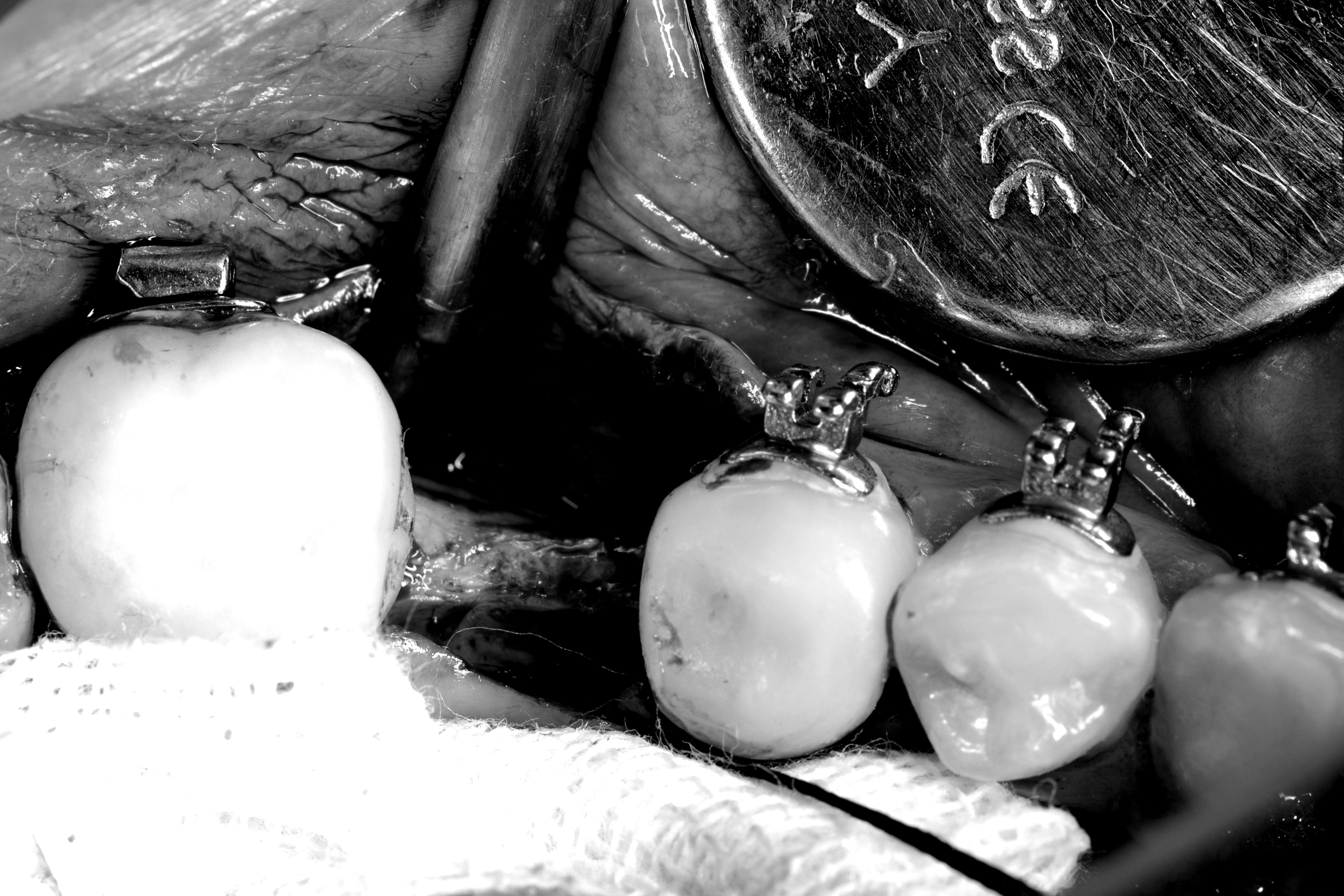 【牙套日记】三重祐民牙医 齿颚矫正完成后,接着进入最后植牙补骨阶段❤️齿颚矫正 杨大为医师