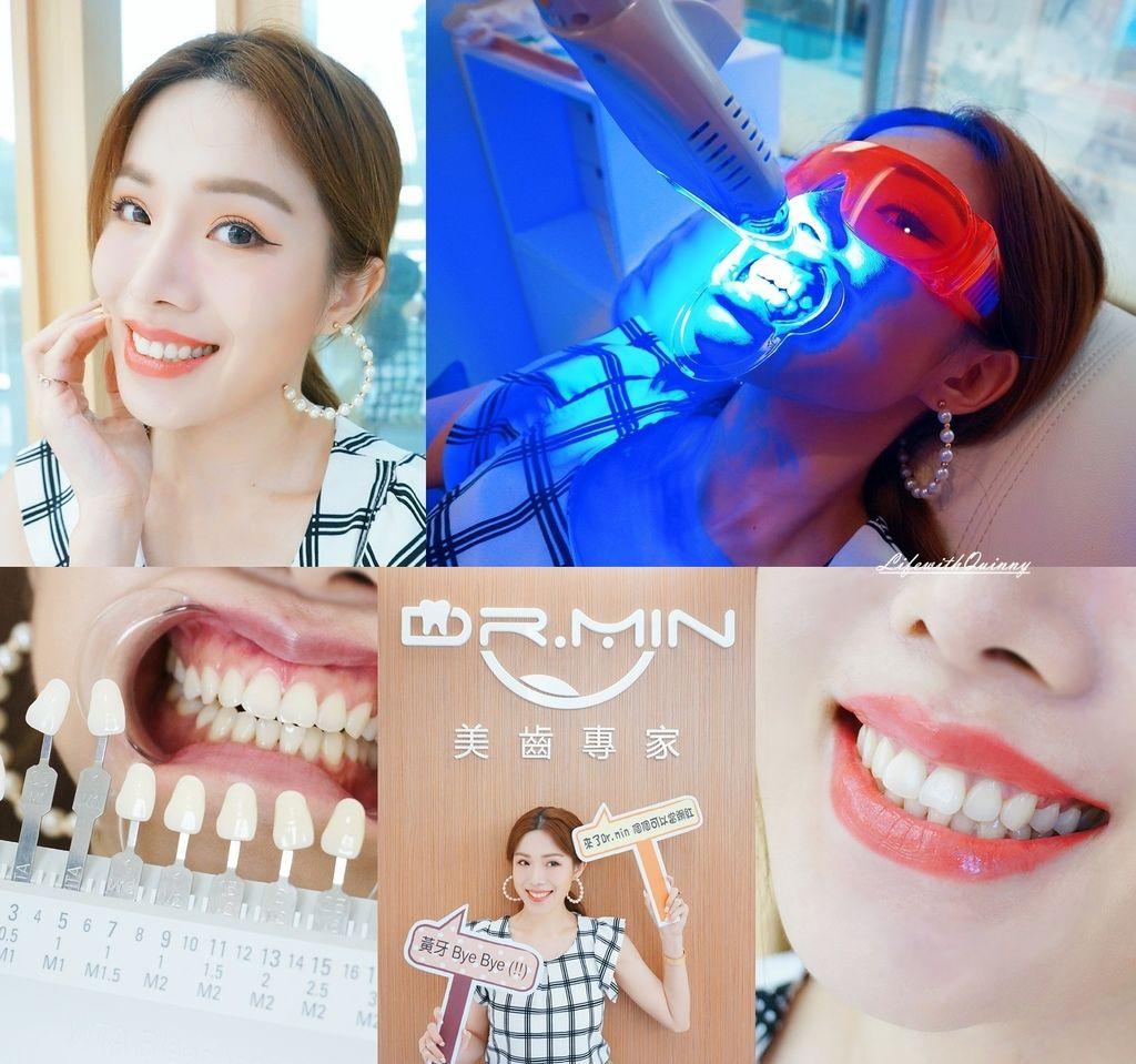 Dr.Min桃園牙齒美白推薦-冷光美白推薦