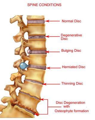 spine condition
