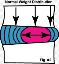 weight bearing2