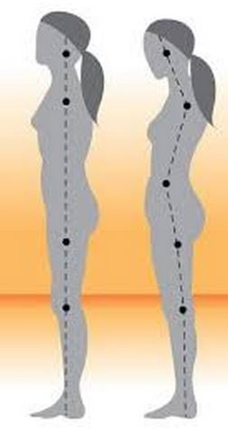 posture1-1