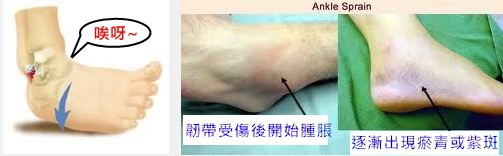 ankle s5