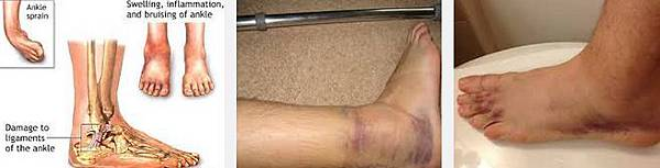 ankle s4